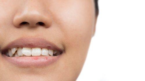 Apaisez le mal de dents de façon naturelle