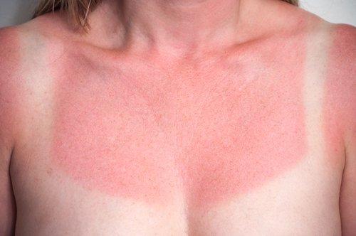 Comment soulager un coup de soleil de façon naturelle?