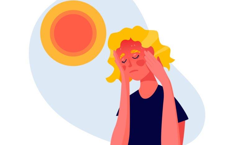 Comment soulager un coup de soleil