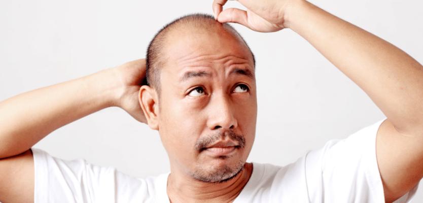 L'alopécie, pas de quoi s'arracher les cheveux