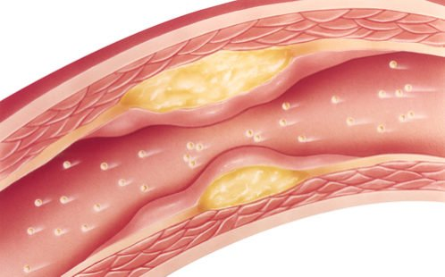Lipides : le bon du mauvais gras