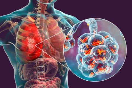 La coqueluche, une maladie qui peut avoir de graves conséquences
