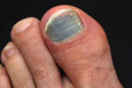 Comment éviter l'ongle noir ?