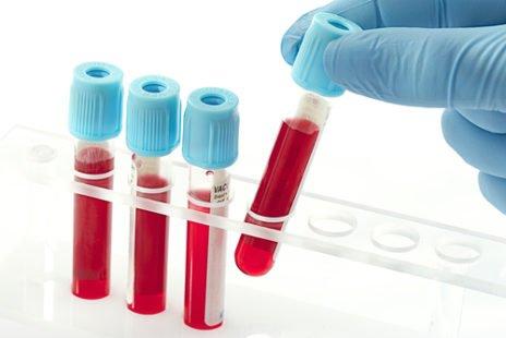 L'anémie, un symptôme à prendre au sérieux