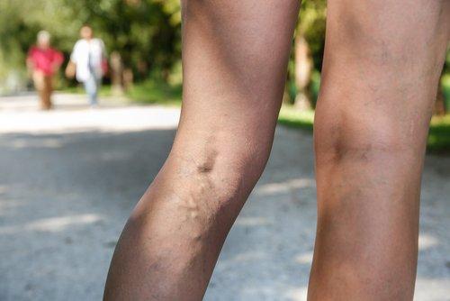 Qu'est-il possible de faire contre les varices ?