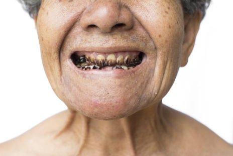 Que faire contre la carie dentaire ?