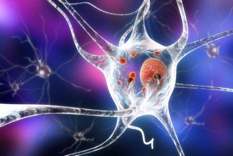 Pour tout savoir sur la maladie de Parkinson