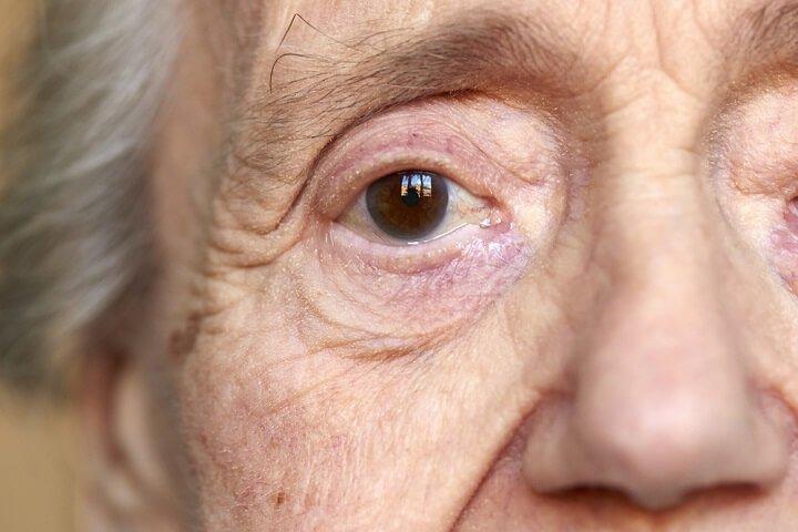 Alzheimer, une maladie neurodégénérative