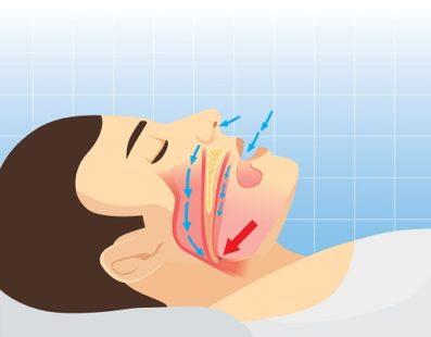 Apnée du sommeil : une maladie chronique