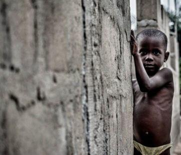 Malnutrition : dénutrition ou obésité