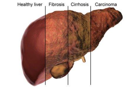 Différents stades d'évolution d'une cirrhose