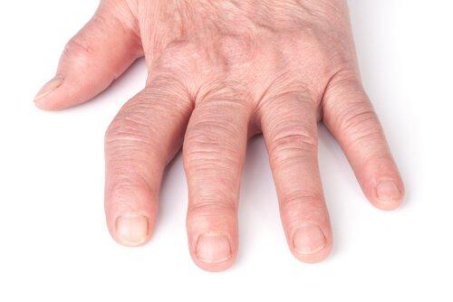 Photo of Polyarthrite rhumatoïde, la destruction des articulations