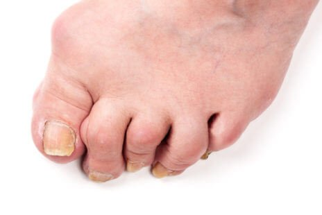 Polyarthrite, une maladie invalidante
