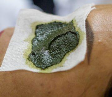 Cataplasme à l'argile verte sur genou