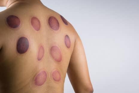 Sur la peau, des cercles rouges caractéristiques
