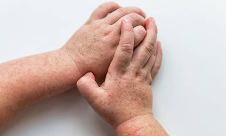 Photo de mains atteintes par la scarlatine