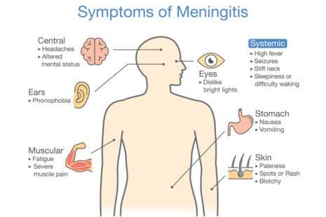 Les symptômes qui doivent alerter sur les formes de méningites